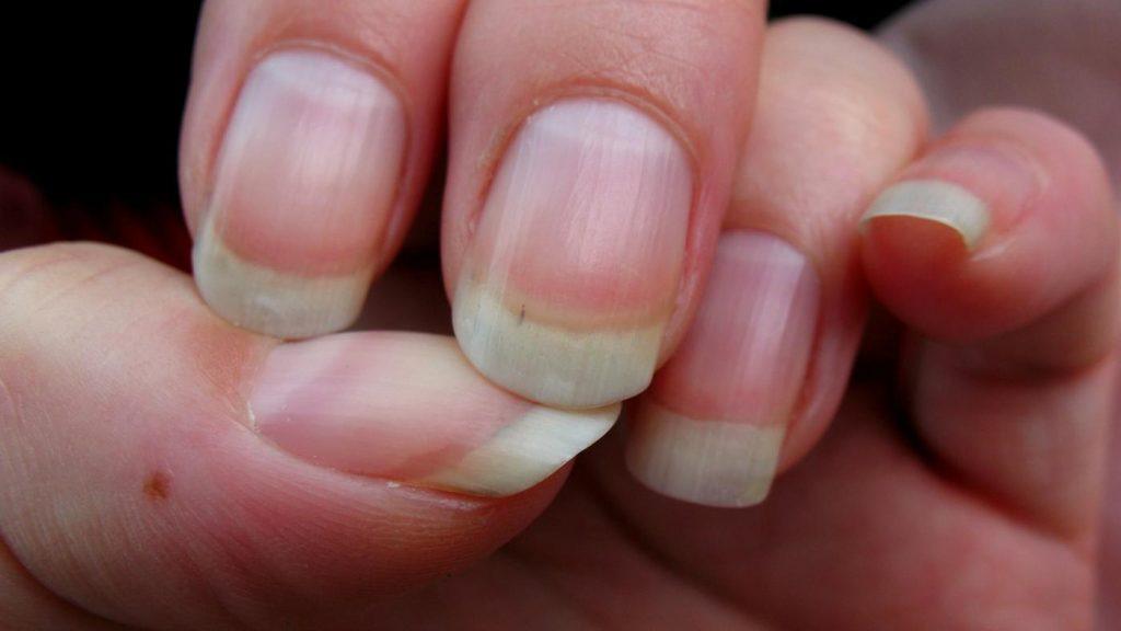первоначальные проявления грибка на ногтях рук вывести запах пота
