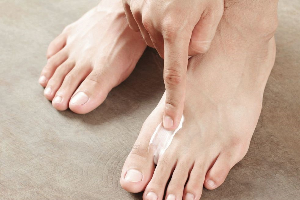 Грибок на пальцах ног лечение прополисом