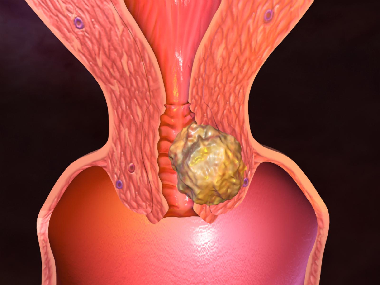 Нра) эндометриоз у девственниц