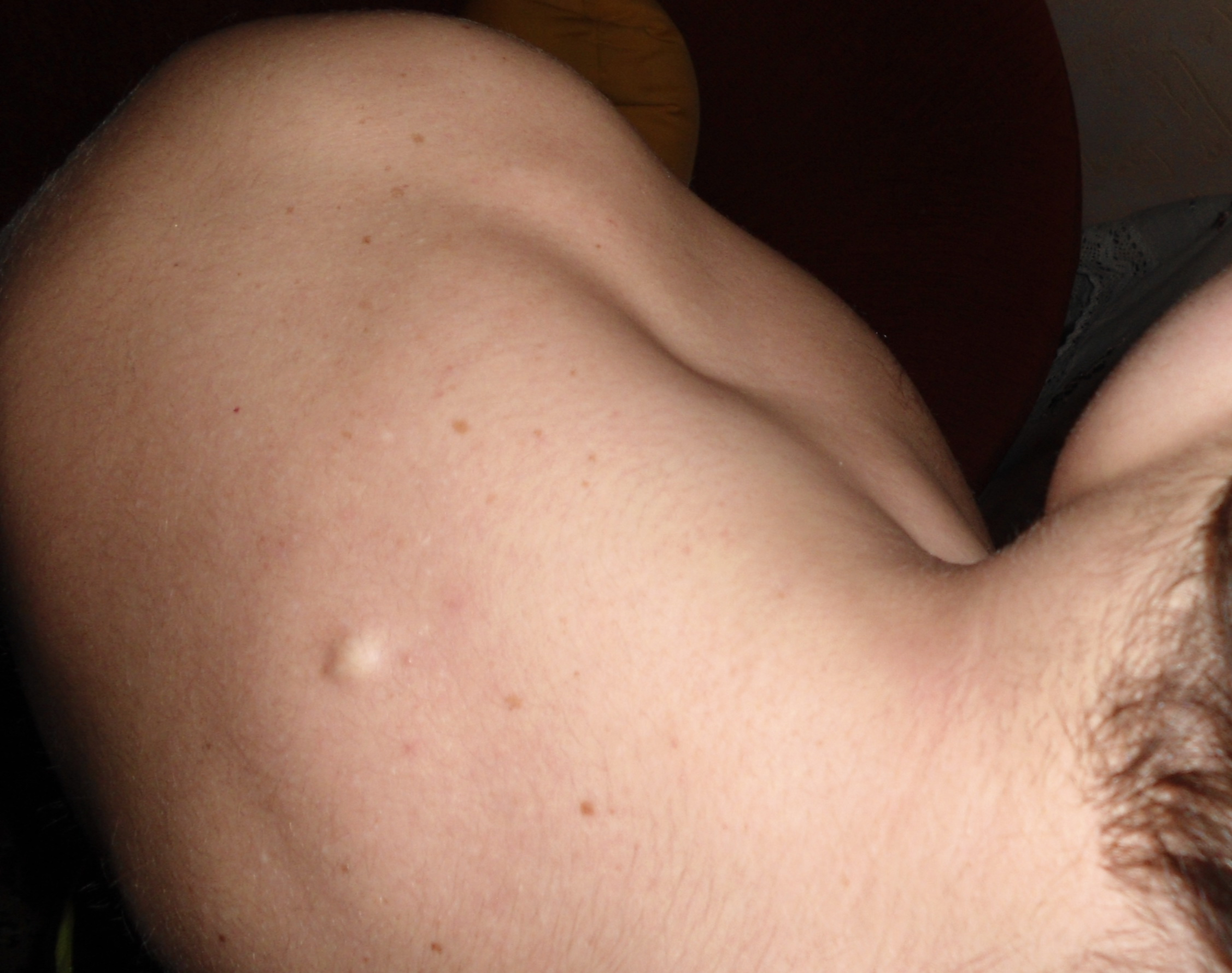 термобелье позволит шишка на спине около лопатки особой популярностью