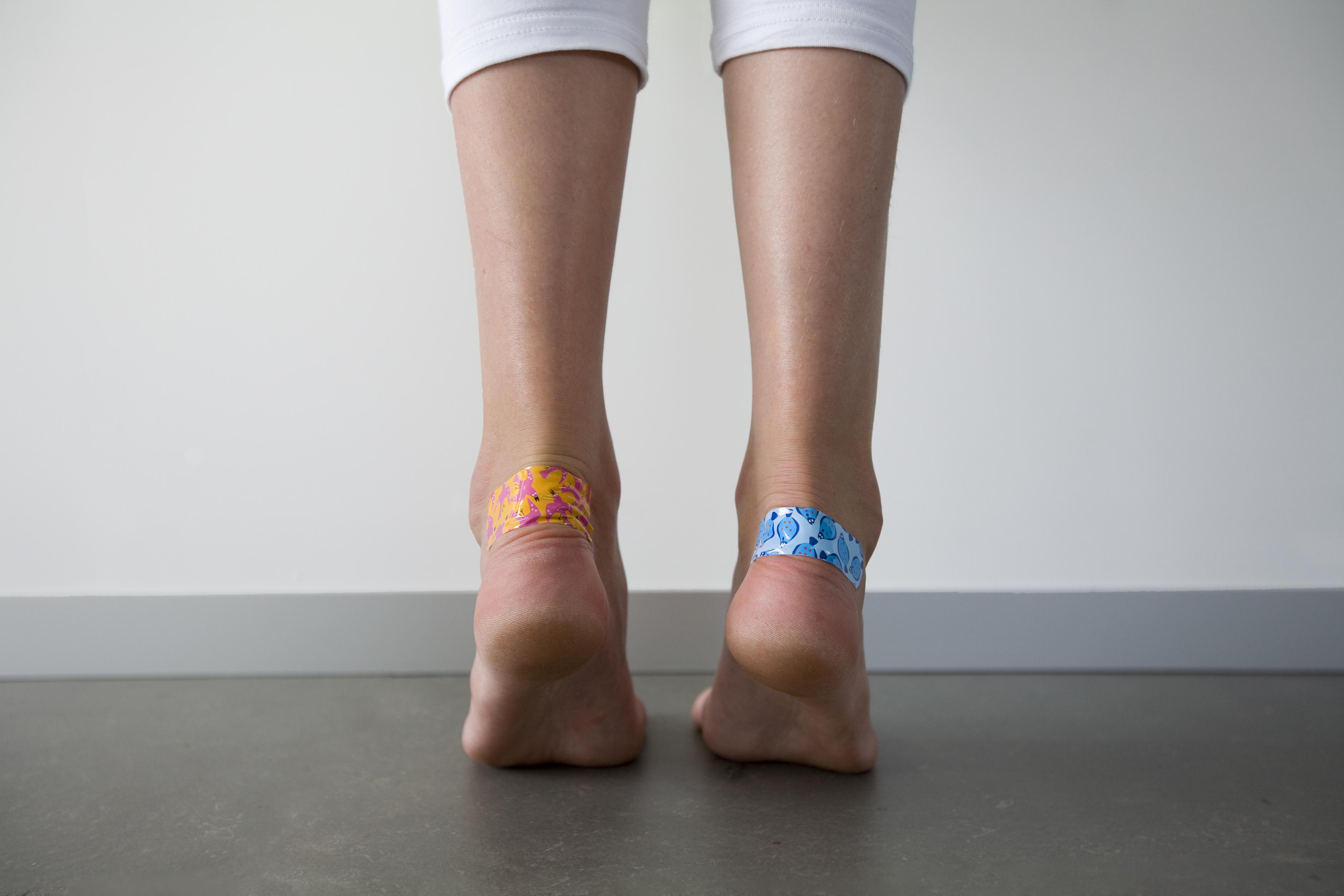 чем лечить мозоли на ступнях