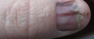 Сколько живут после удаление меланомы