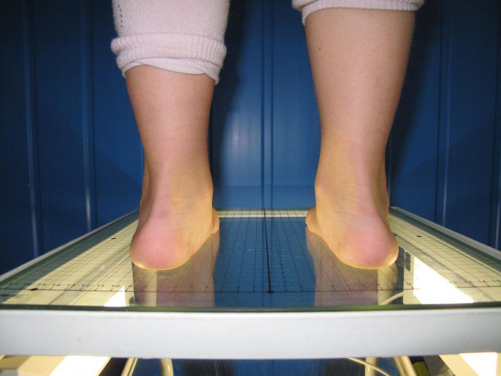 гигрома коленного сустава у детей