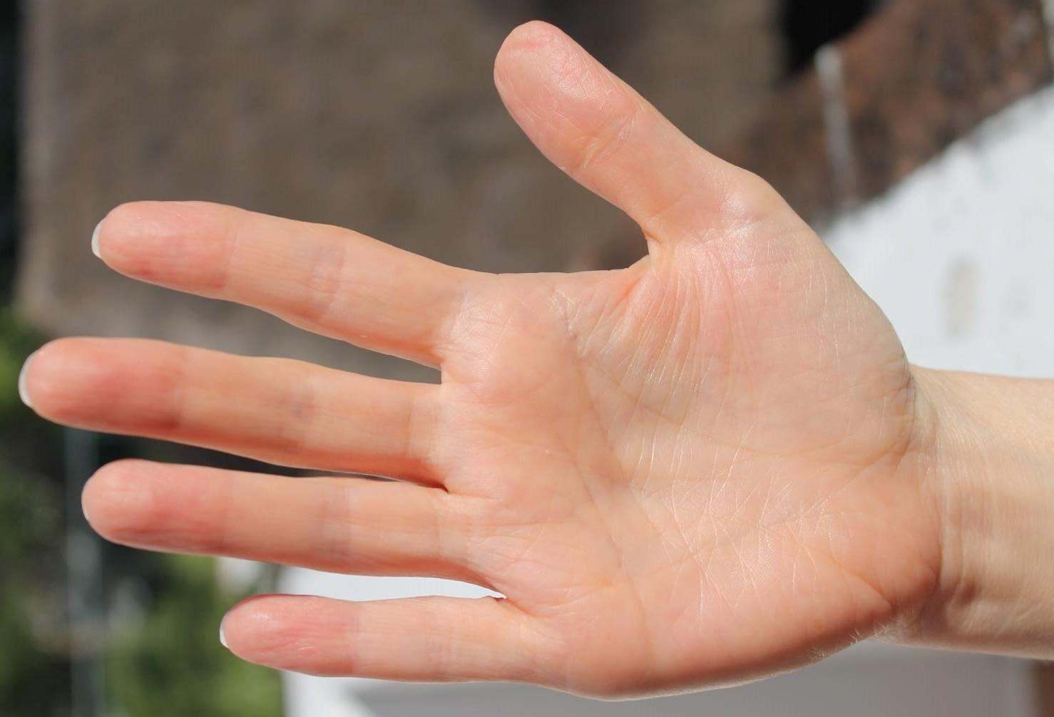 Суставы пальцев рук их характеристика суставы народные средства лечение