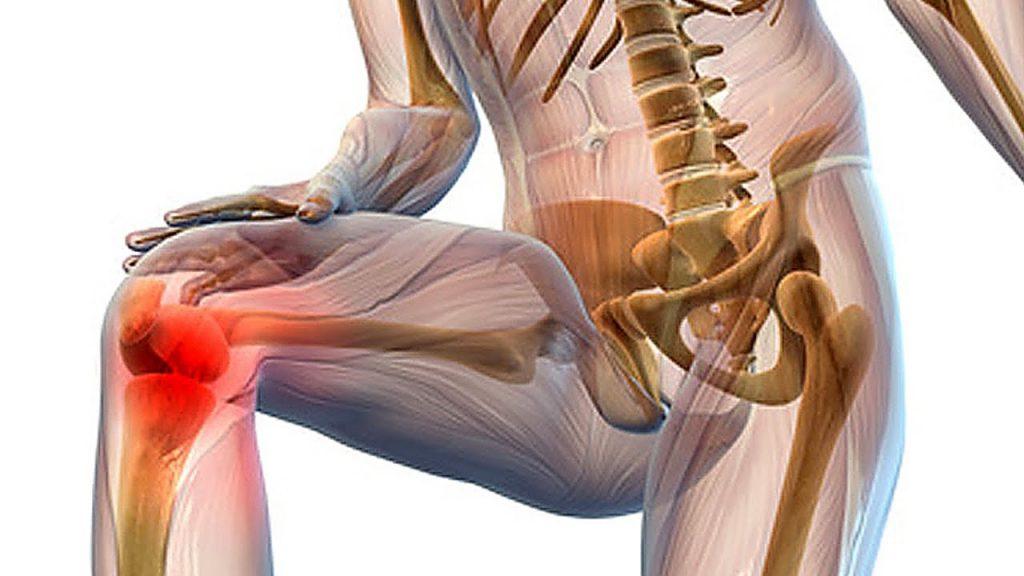 Гигрома коленного сустава выбор метода лечения