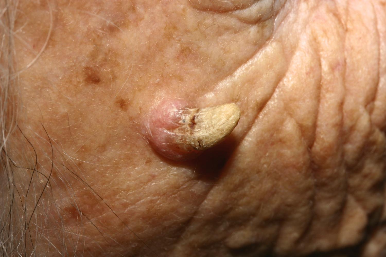 Причина болей за грудной клеткой