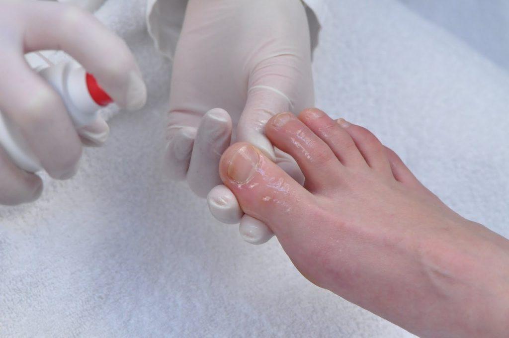 Меланома ногтя фото начальная стадия
