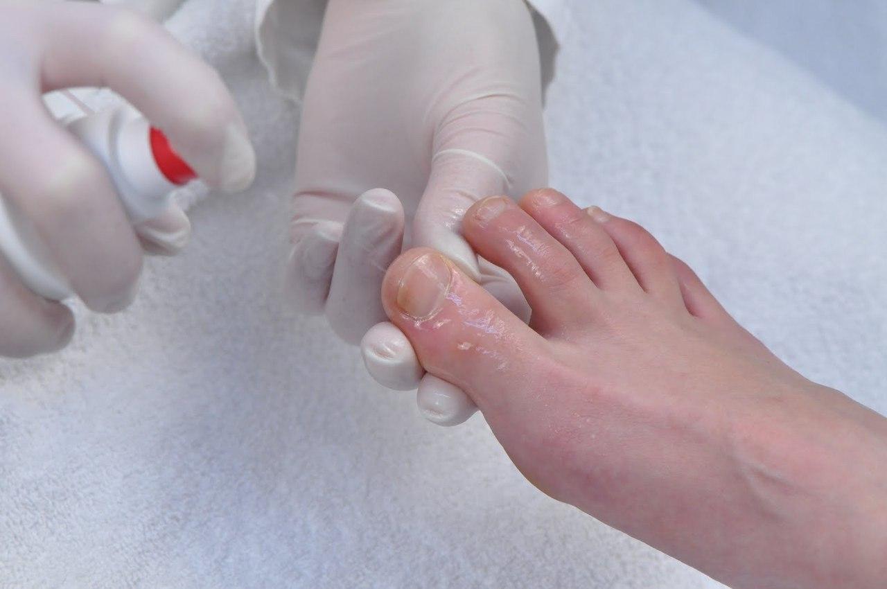 Деготь при лечении грибка ногтей