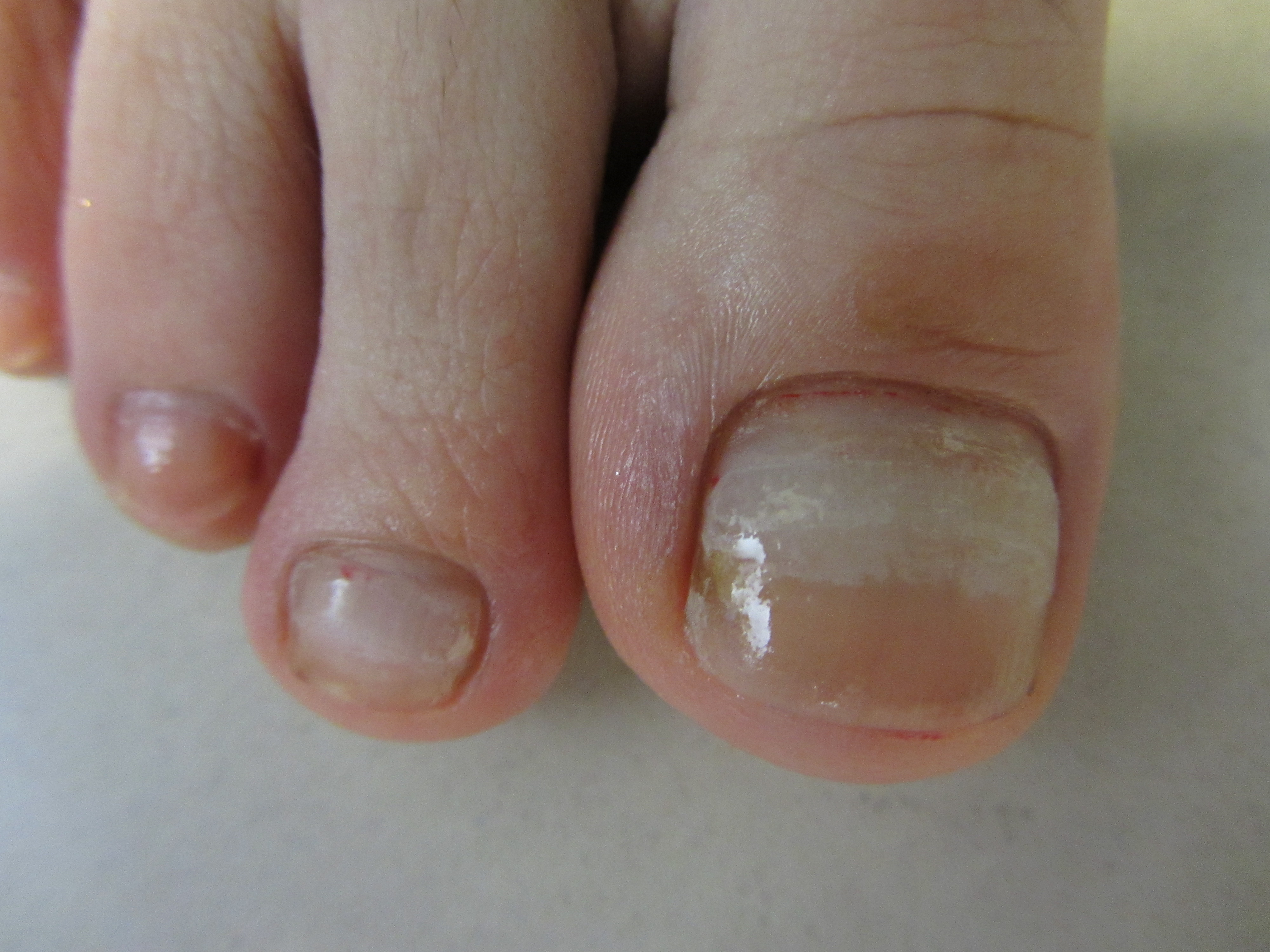 Заболевания кожи фото Ваш домашний дерматолог 54