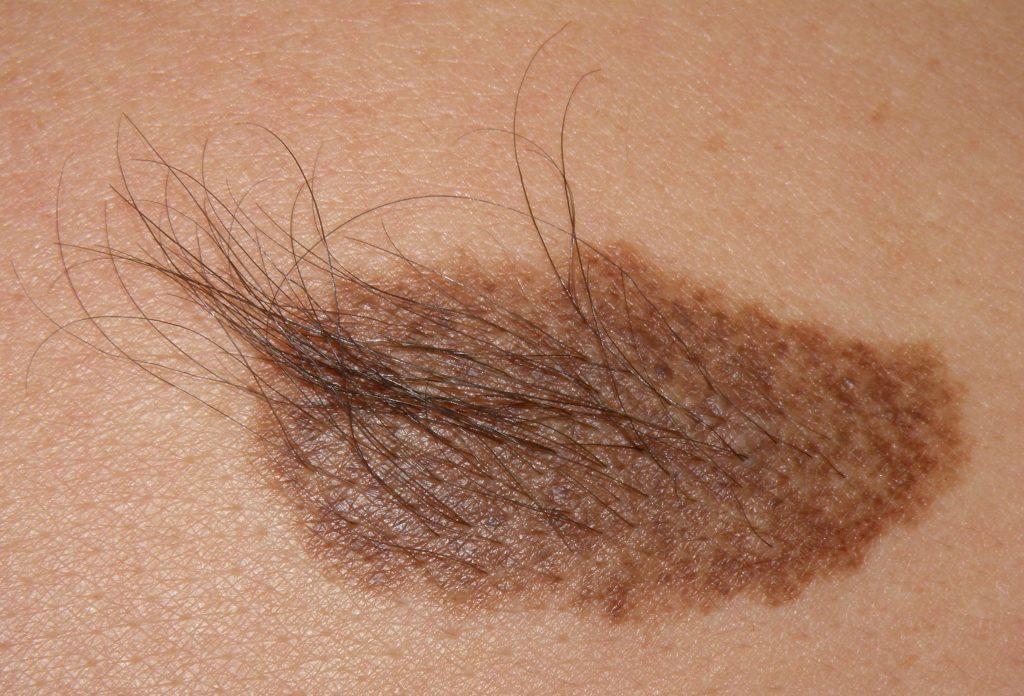 Смешанный невус кожи