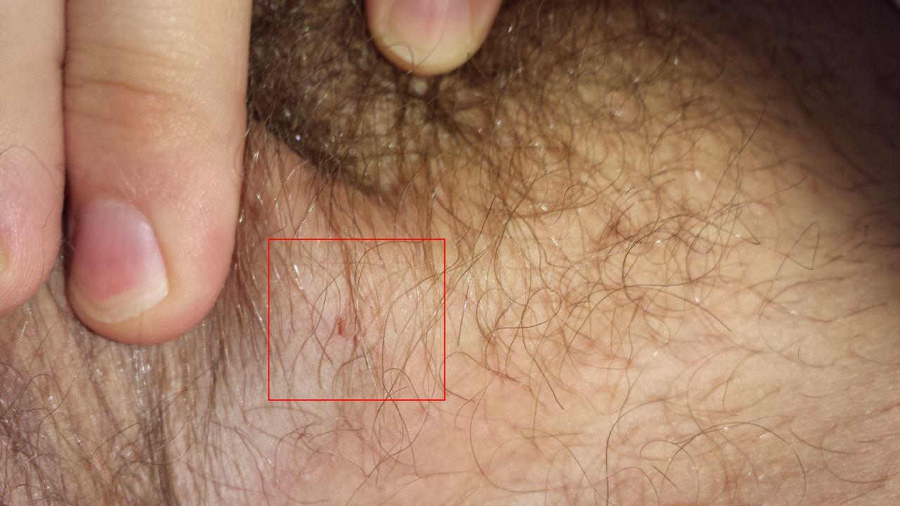 Генитальная бородавка папиллома фото фото